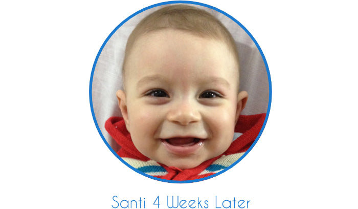 Baby after using EarBuddies | Sticky Out Ears Gone | Smiling Baby