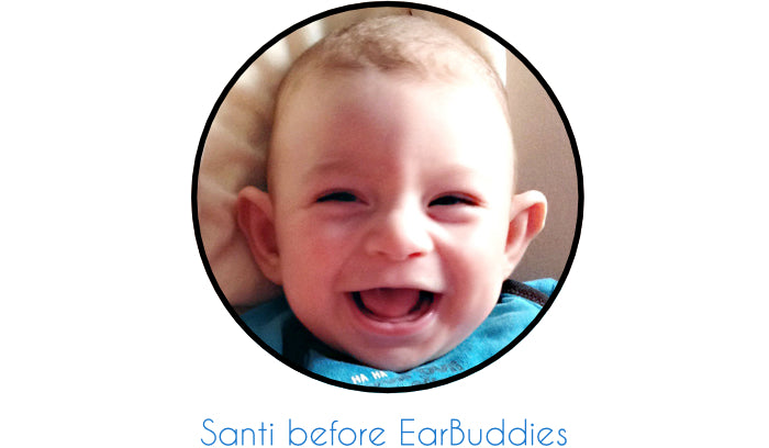 Santi, before using Ear Buddies with stick out baby ears | smiling baby