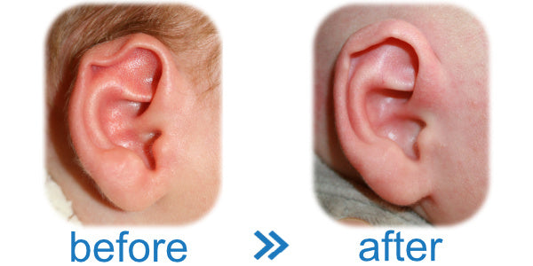 Splint ears to correct Rim Kink Deformity in Baby and Infant Ear
