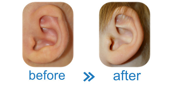 Baby newborn with bend in ear. Easy, cheap, effective solution.