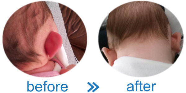 Ear Reshaping Splintage Device without Surgery   Results Before and After