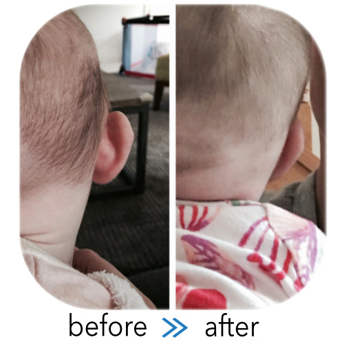 Stick Out Ear viewed from behind the head | before & after Ear Buddies