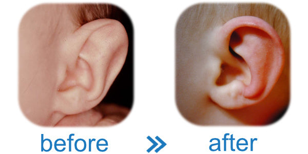 Spock Ear is another term for Stahl's Bar, which EarBuddies™ corrects in Babies