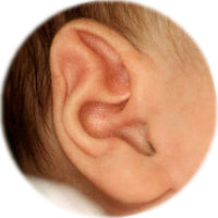 pointed 'elf' (stahl's bar) ear before being reshaped by ear buddies splints
