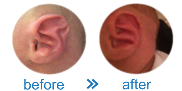 Baby's Ears are Pointed & Folded | Use Ear Buddies | Find Results & Evidence here
