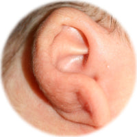 ear lobe before correction with ear buddies cartilage shapers