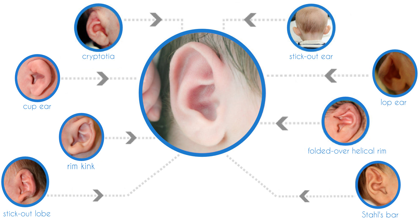 What Ear conditions can Ear Buddies treat? Rim Kink, Stick Out ears, Stahl's Bar, Cup Ear, Rim Kink e.t.c
