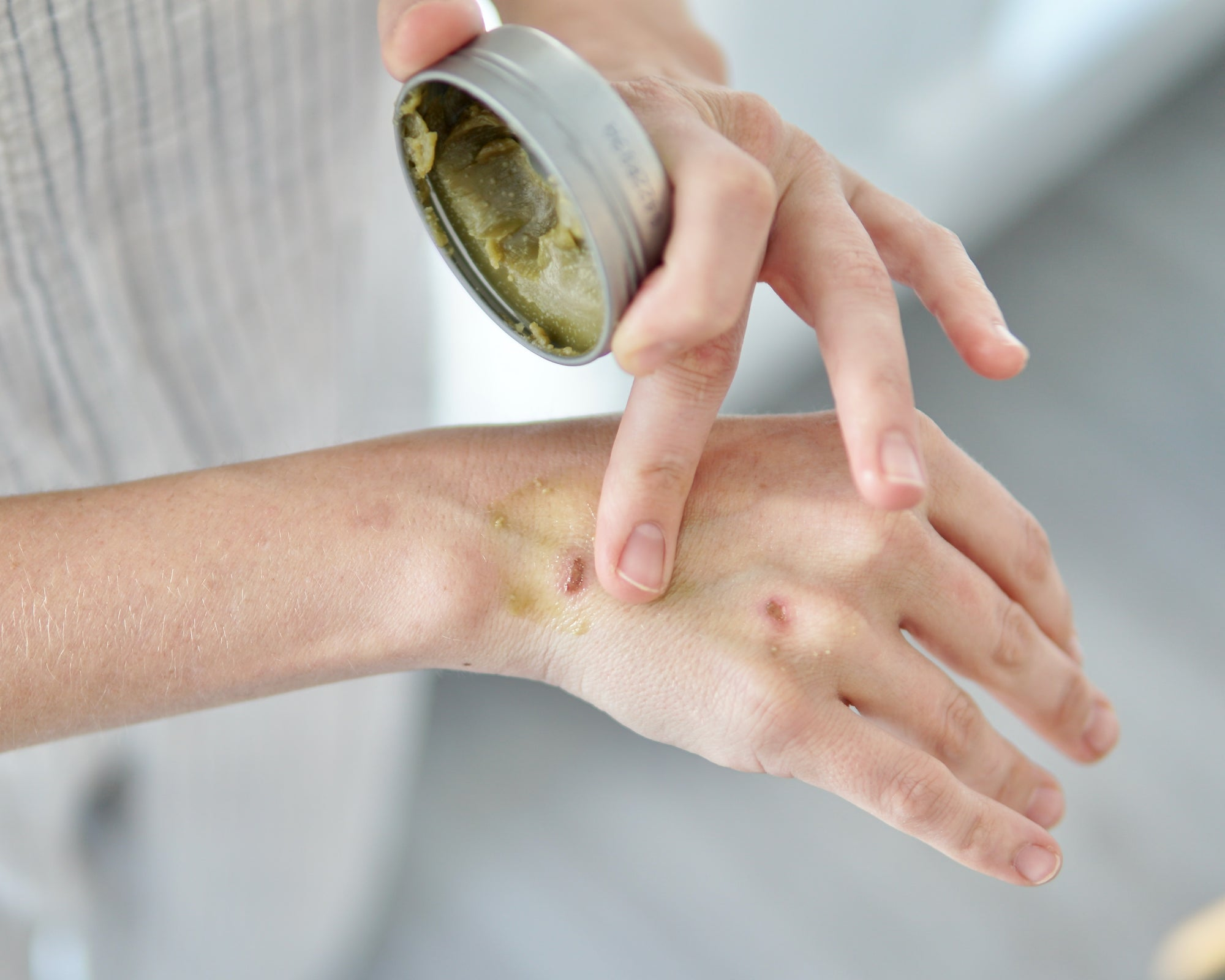 How to use Rescue Balm (How to Naturally Heal Irritated, Dry Skin)