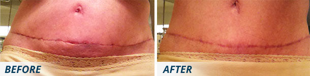 Scarology Ultimate Scar System before and after tummy tuck scar