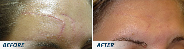 Scarology Ultimate Scar System before and after facial scar