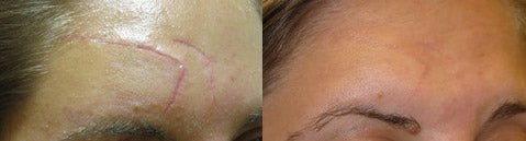 Scarology Results Before and After