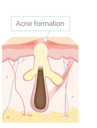 Acne Forming