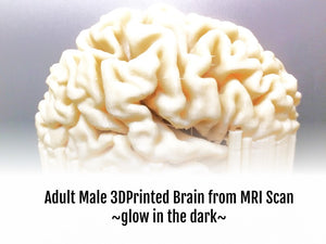 IM-Brain MRI - Healthy Adult Brain