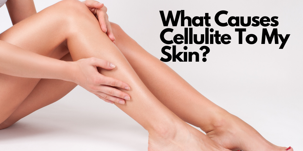 What Causes Cellulite To My Skin?