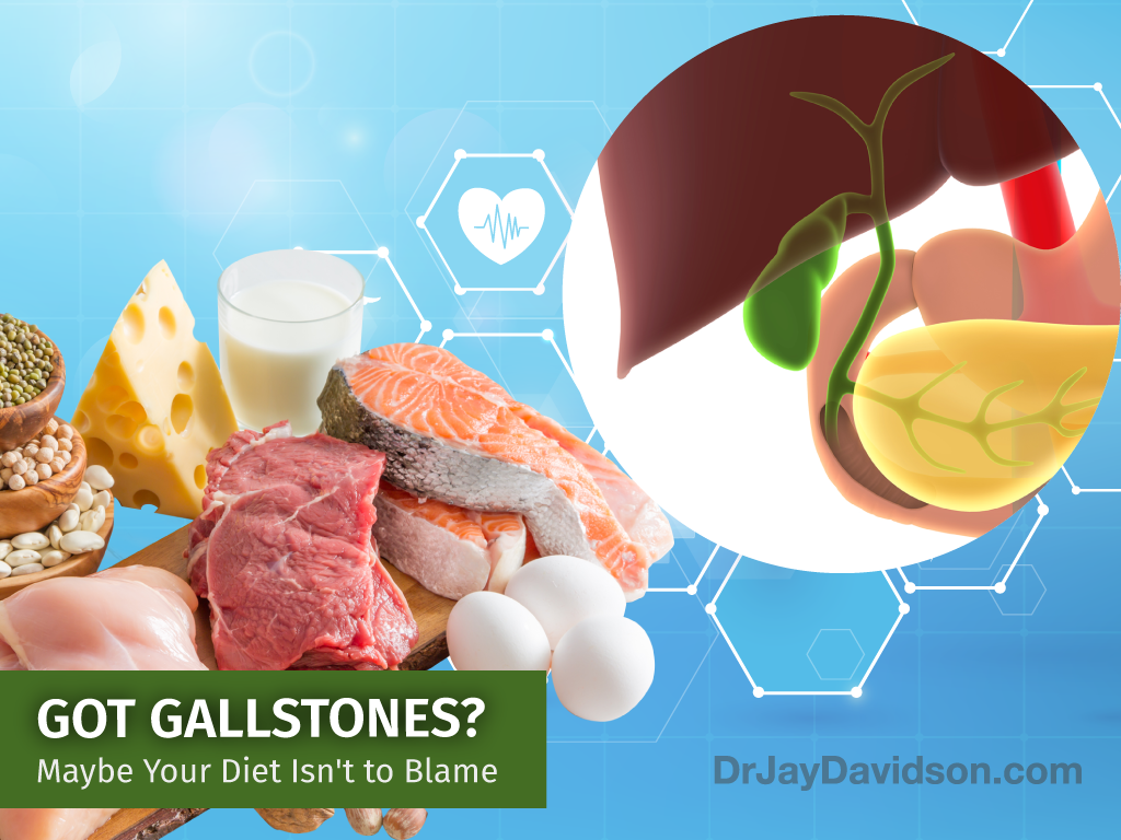 Gallstones - Maybe your diet is not to blame?