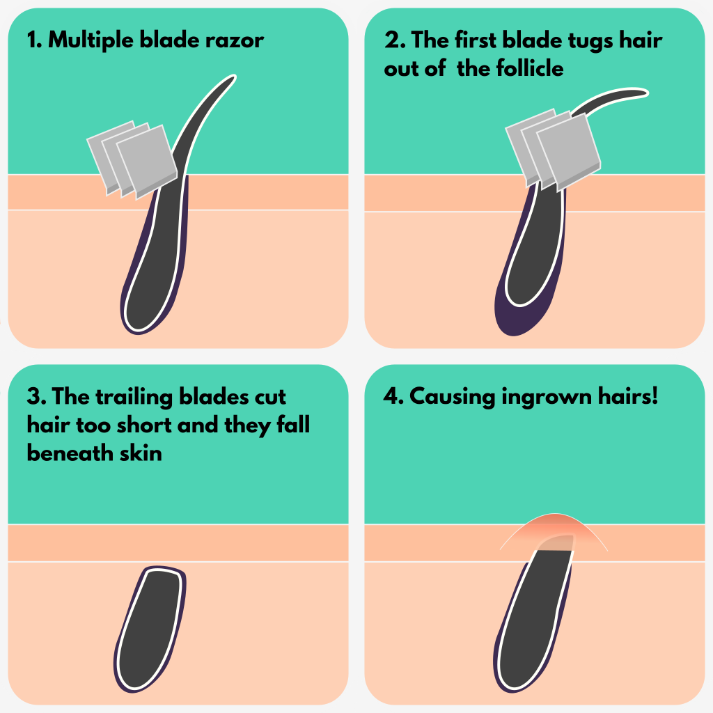 Info graphic showing how a multiple blade razors tugs and pulls on hair cutting it to short, resulting in ingrown hairs