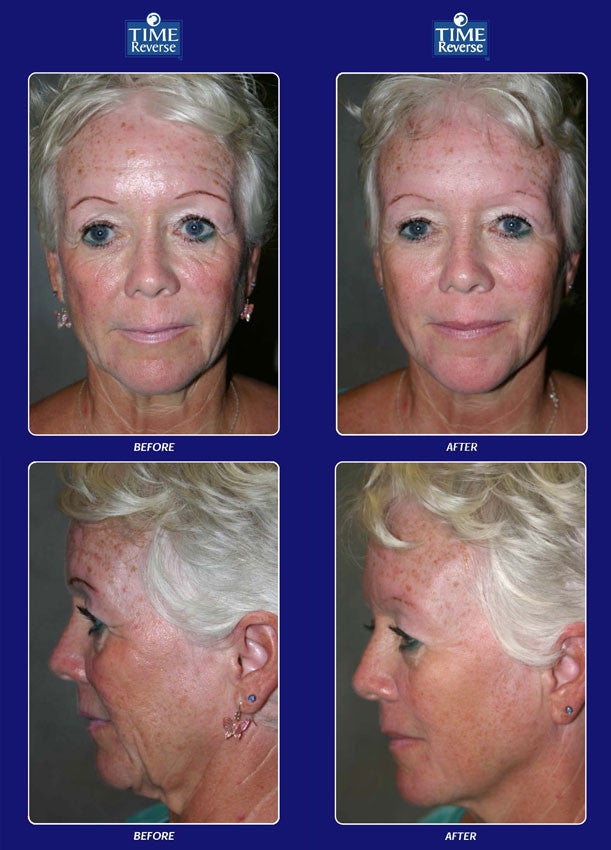 Time Reverse is the #1 Non-Surgical Face-Lift