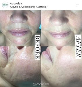 Before And After Results Aduro Australia