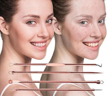 Load image into Gallery viewer, Acne Removal Set Face Care Tools