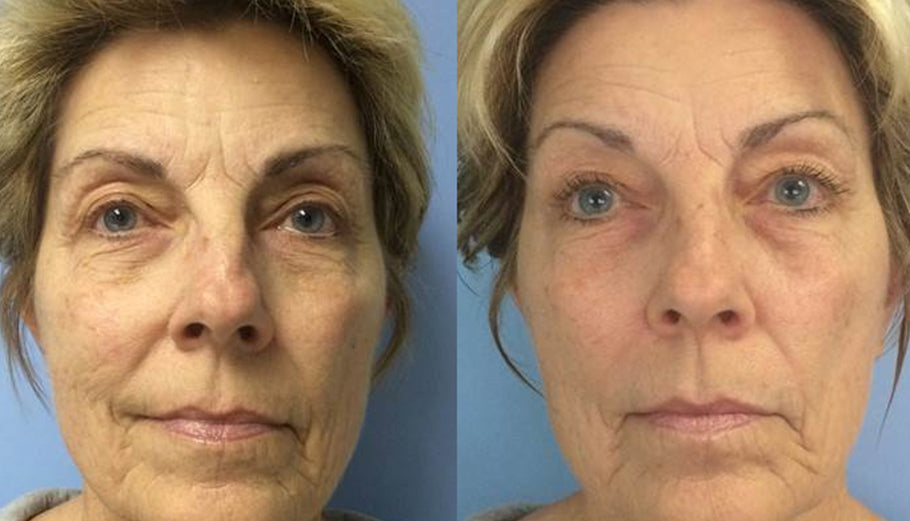 Before/after LED Facial