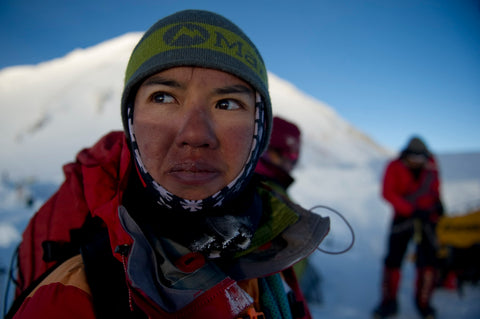 Sunburned face while summiting Denali