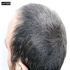 After David B. Story with Diffuse Alopecia Areata | silaxofficial.com
