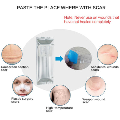 MIRACLE STRETCH MARK + SCAR REMOVAL SHEETS