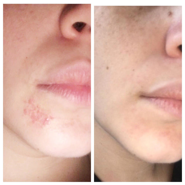 Before and after photo of face from tamamu oil benefits