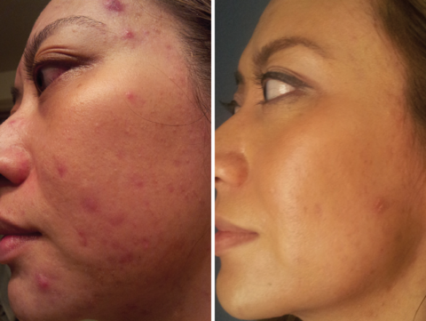 Case Study: Treating Acne with Veritas Bioactives