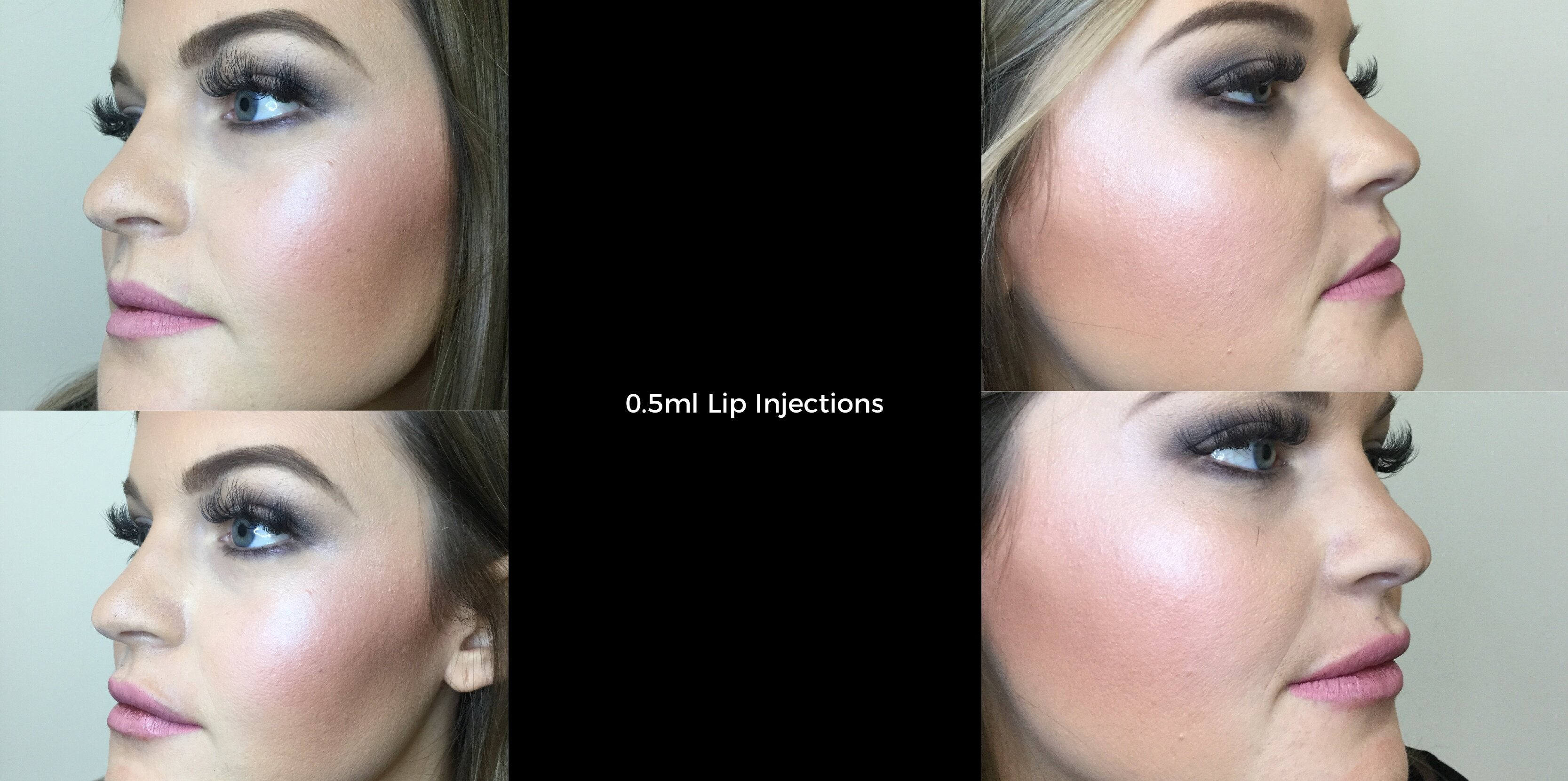 Lip Injections East Brisbane by T.Clinic