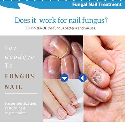 Nail Repair Treatment Liquid Fungus Remover Protective