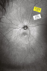 The Invention and Conclusion of the Eye - Toril Johannessen - Supplement 3