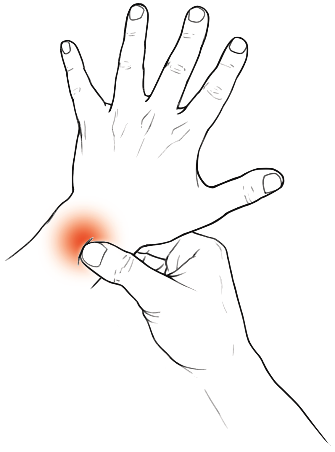 Tendonitis Carpal Tunnel Repetitive Strain Injury The Art of Dexterity