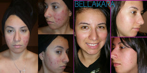 BELLA KARA ACNE KIT