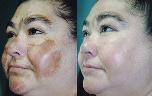 MANCHA - DARK SPOT TREATMENT