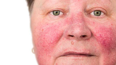 You have Rosacea; you're not alone.