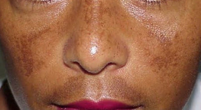 What is THAT on my skin?! Day 3: Melasma.