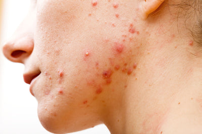 Malassezia Foliculitis and Yeast skin problems