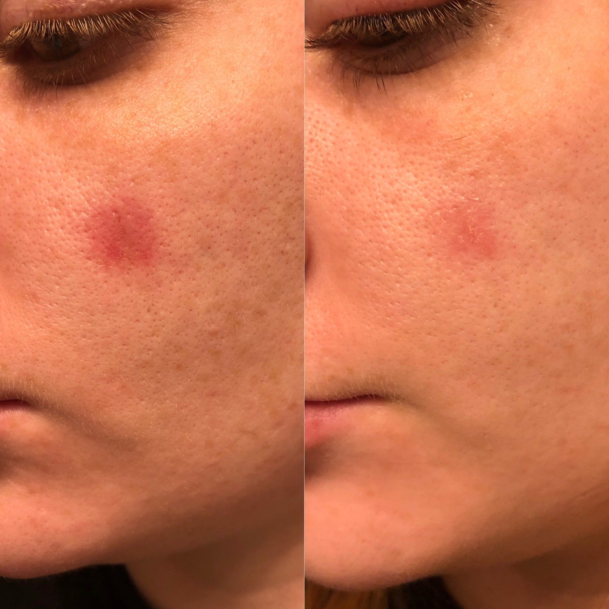before and after from use of MSM gel, skin wound is healed 3 days later