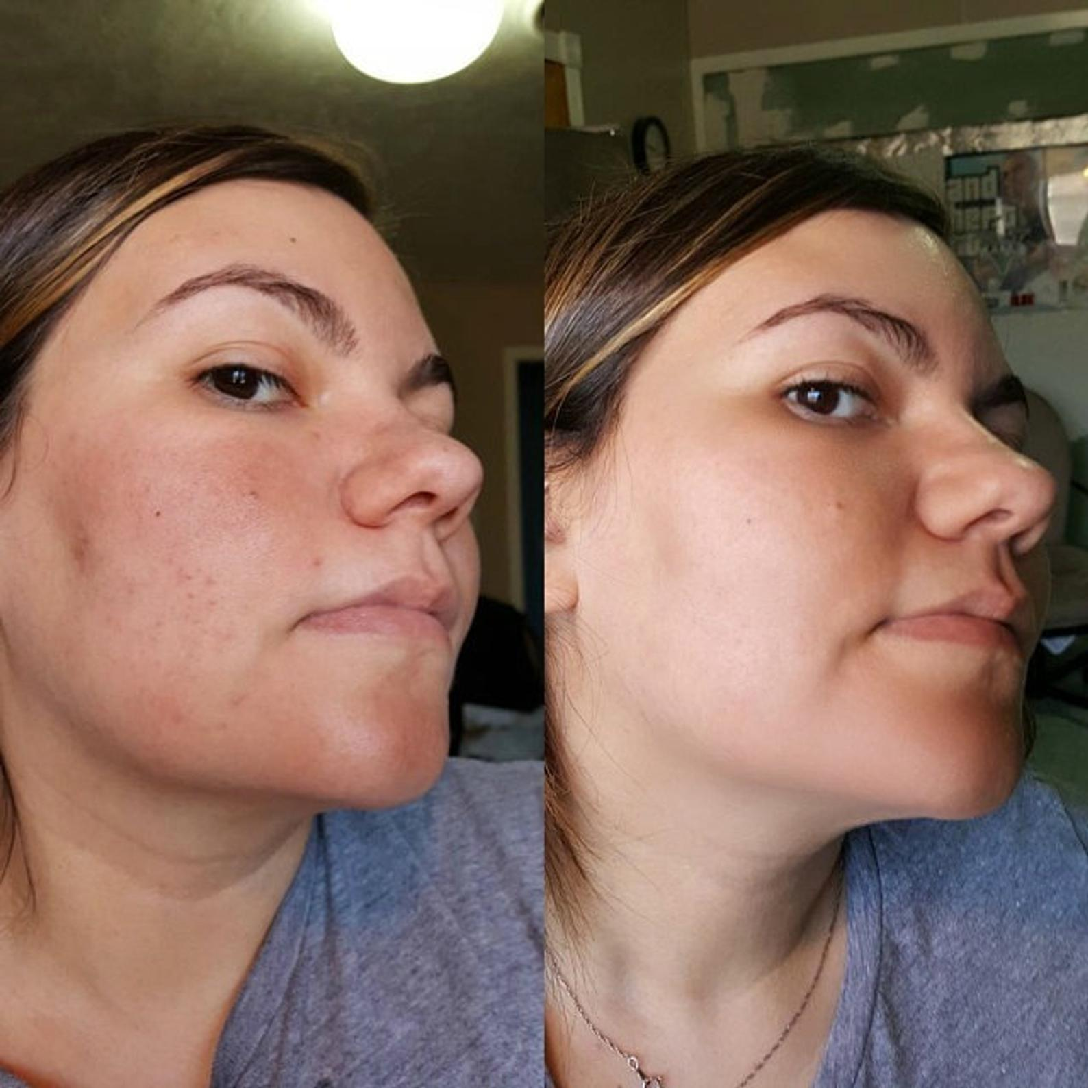 before and after of rosacea redness on females face from use of the MSM cream