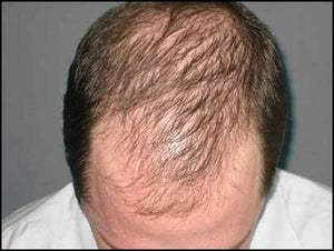 SECRETS TO HAIR REGROWTH AND REASONS FOR HAIR LOSS