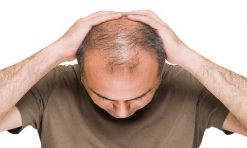 androgenetic alopecia in men
