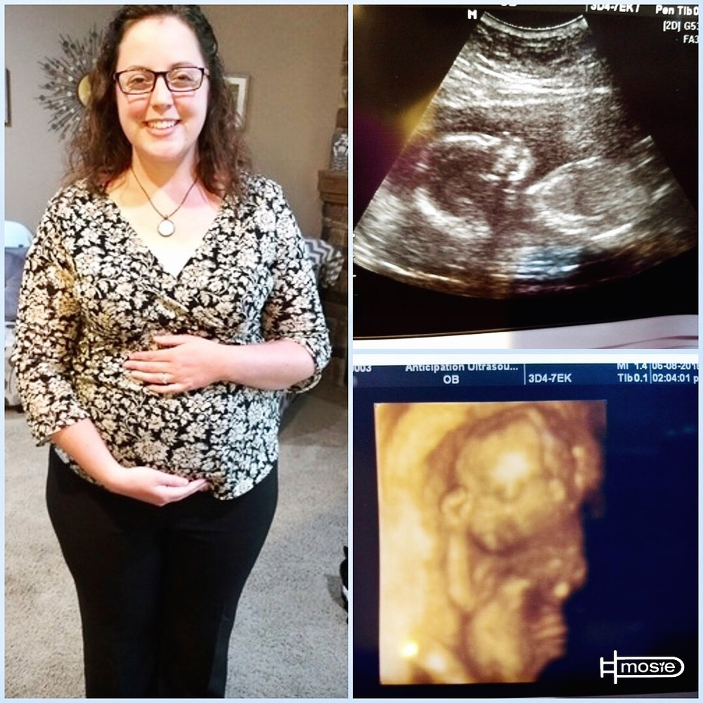 A pregnant woman, a sonogram, and a 3-D ultrasound in a collage