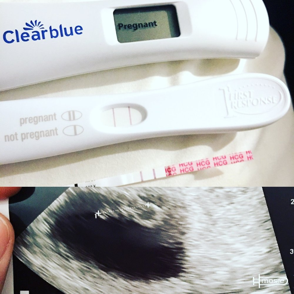 three positive pregnancy tests and sonogram from a Mosie user