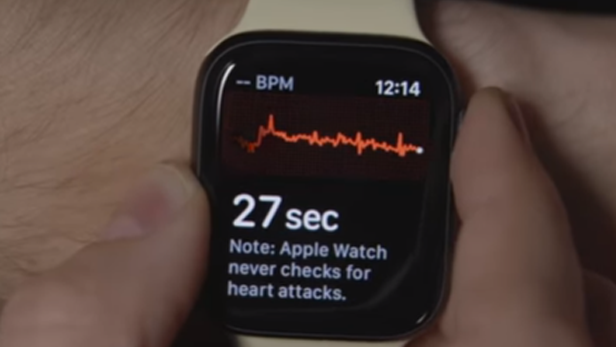 Can Apple watch ECG  detect possible signs of stroke?