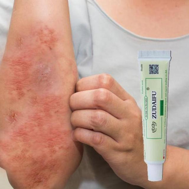 ECZIGON™ : Psoriasis and Eczema Cream