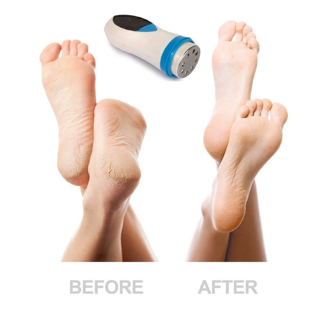 FOOTMAG™ : Magic Foot Pedicure