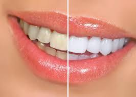 100% Natural Teeth Instant Whitening Pen