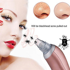 1 pcs Blackhead Removal Electric Facial Pore Cleaner Acne Remover Utilizes Pore Vacuum Extraction Skin Facial skin care tool