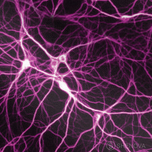 Pink Neurons Synapse